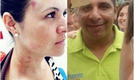 Concejal del Centro Democrático de Mariquita denunciado por golpear a su ex pareja